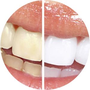 Rehabilitación y estética dental