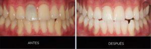 Blanqueamiento dental antes después