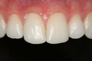 Después blanqueamiento dental